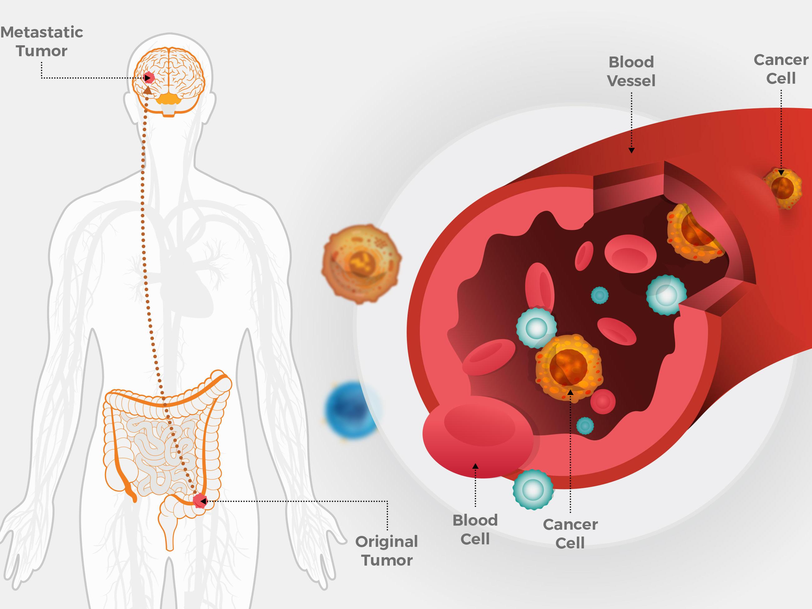 tipuri cancer genetice hpv cancer na garganta