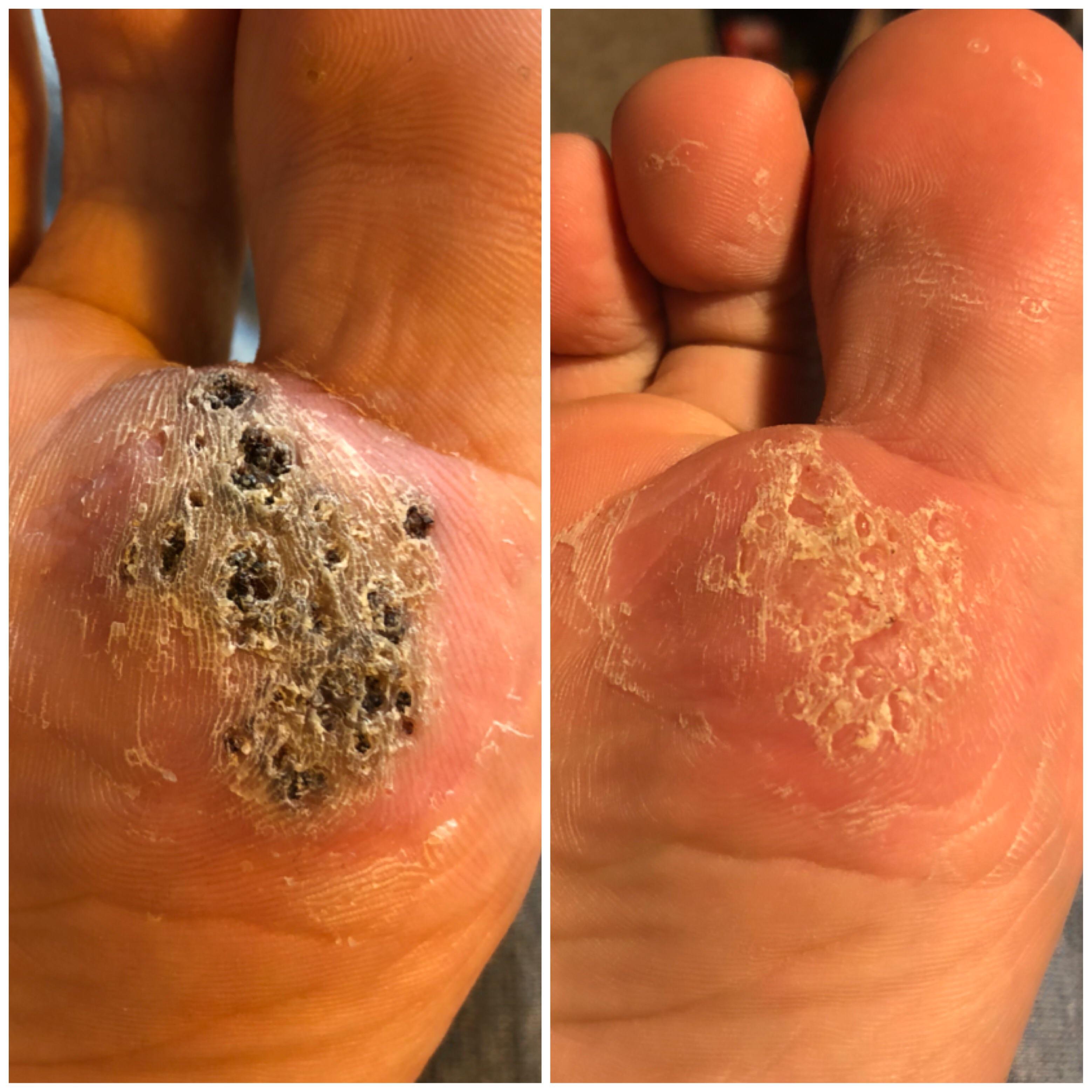 Warts treatment liquid nitrogen Metastatic cancer meaning in kannada