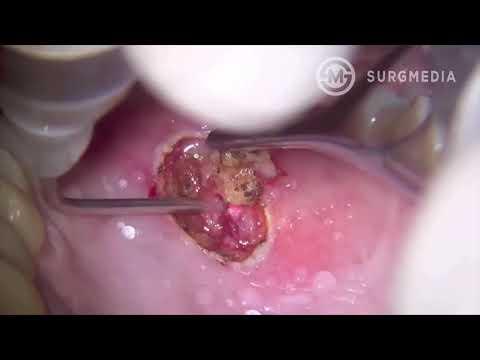 Enterobius vermicularis kțl kurdu enfeksiyonu Virus papiloma humano 16 y 31