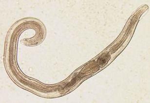 enterobius vermicularis lecenje)