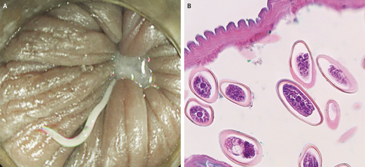 enterobius vermicularis source of infection papilloma invertito