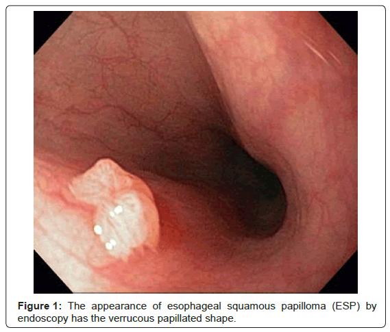 esophageal papilloma surveillance ciuperci bebe