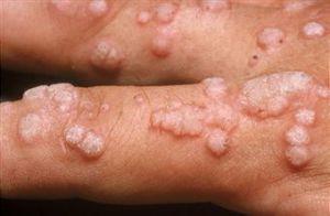 kindermadenwurm( enterobius vermicularis) ce medicament putem adăuga la viermi