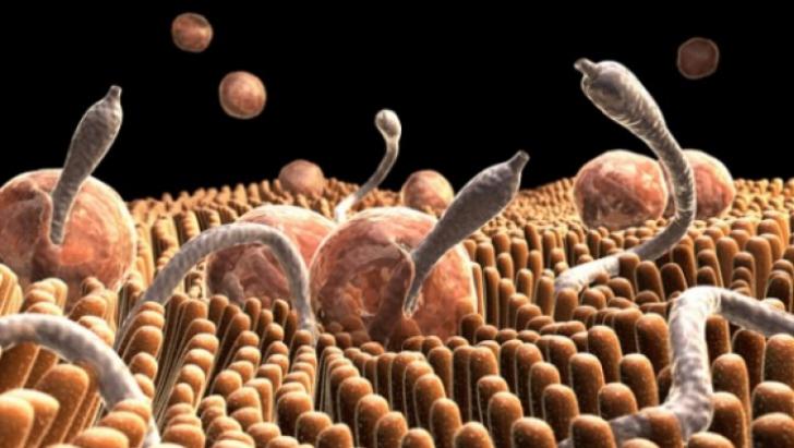 cancer de prostata hematuria