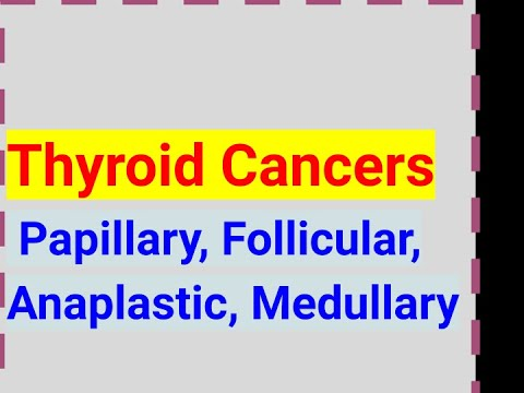 cancer mamar t4