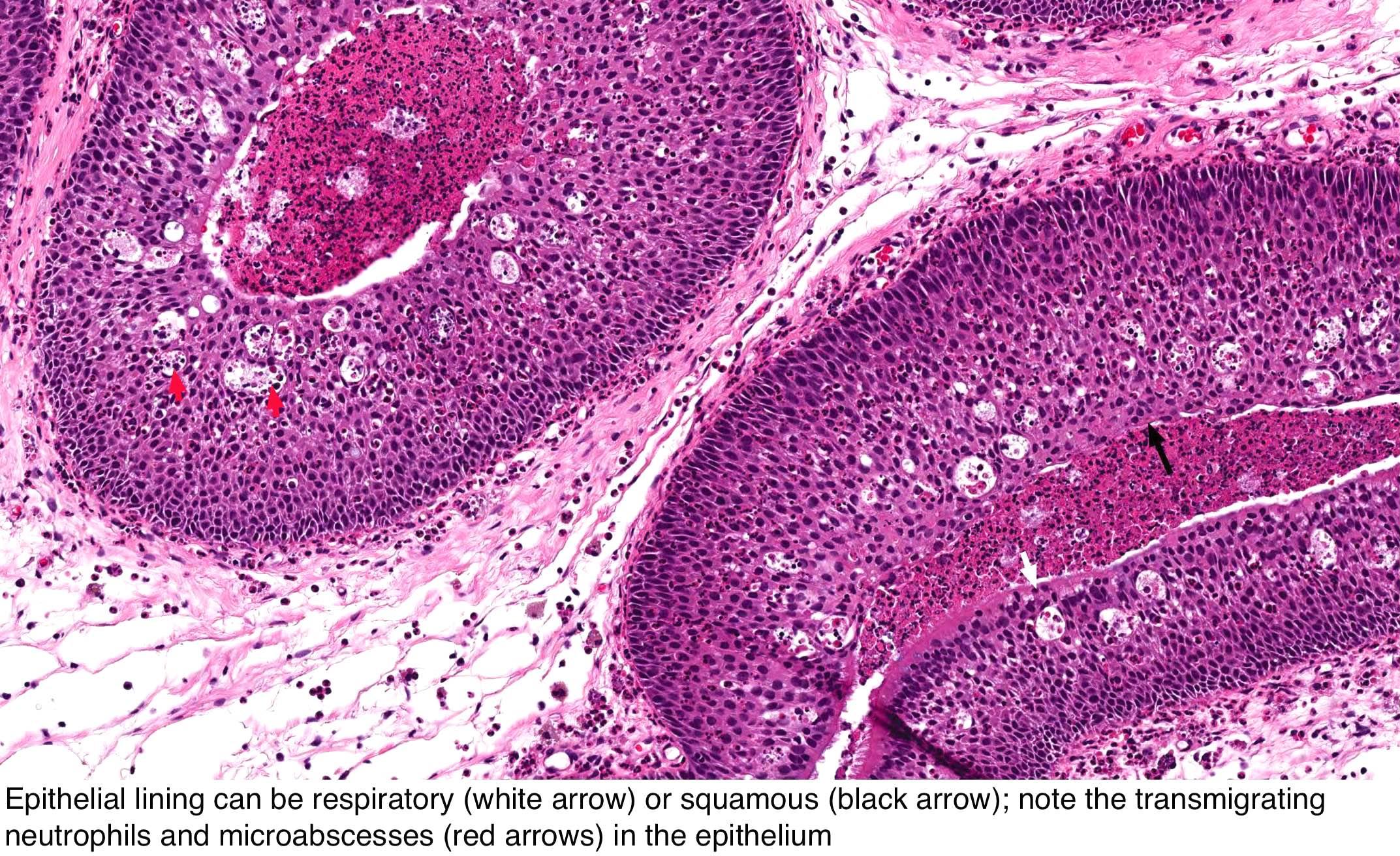 Nasal squamous papillomas.