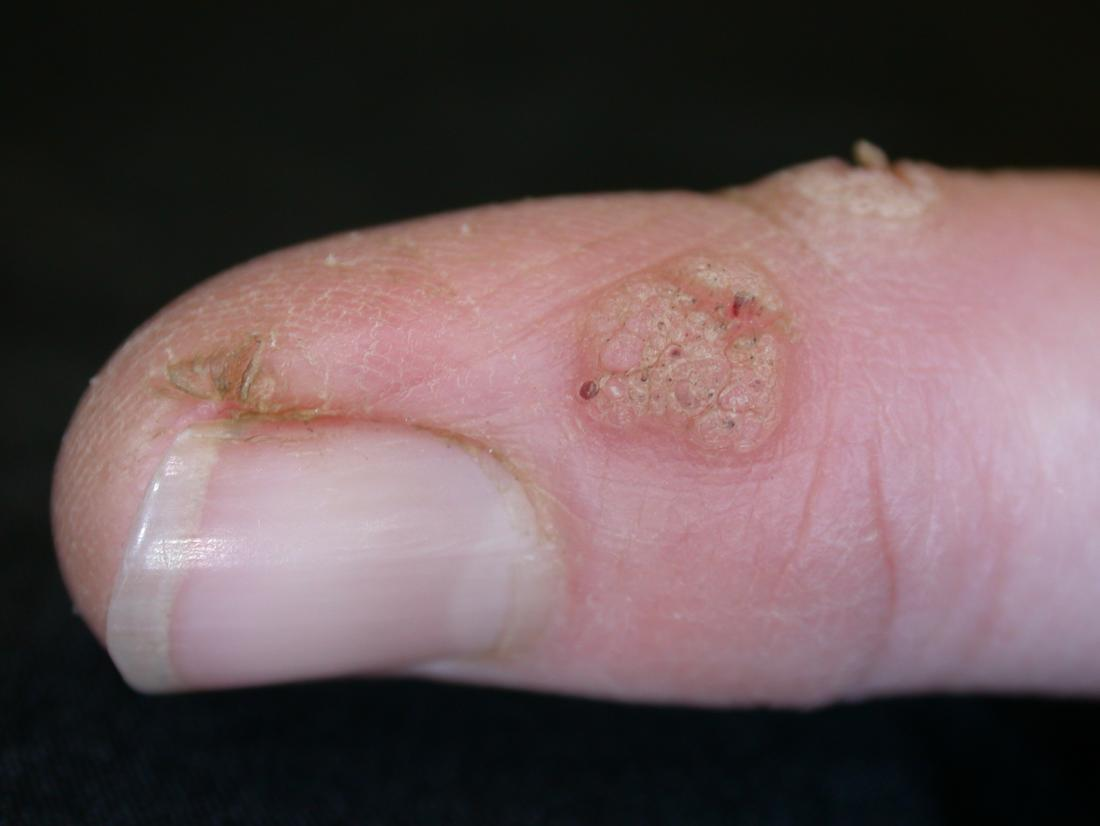 Wart on foot turned white
