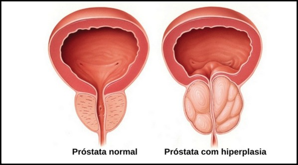 virus papiloma en mujeres metastatic cancer growth