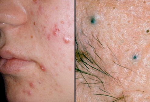 hpv face pimples
