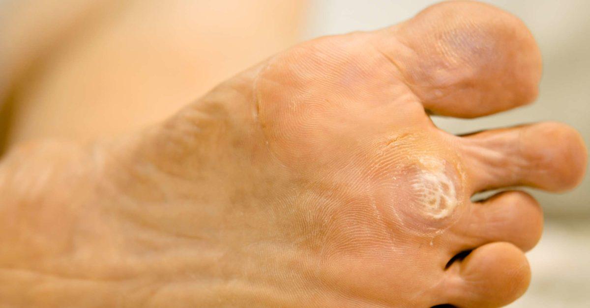leziuni ale pielii giardiei