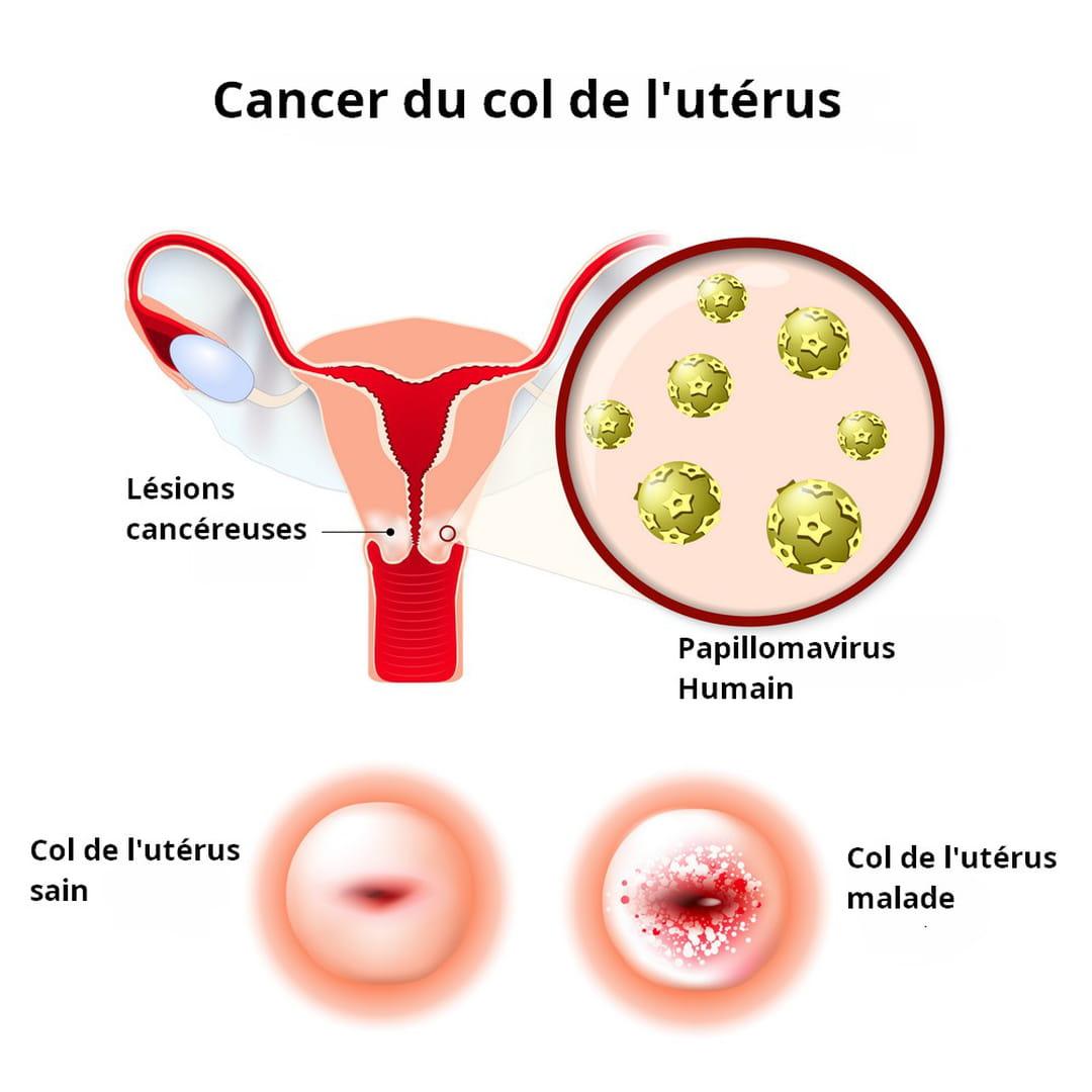 cancerul malign se poate vindeca