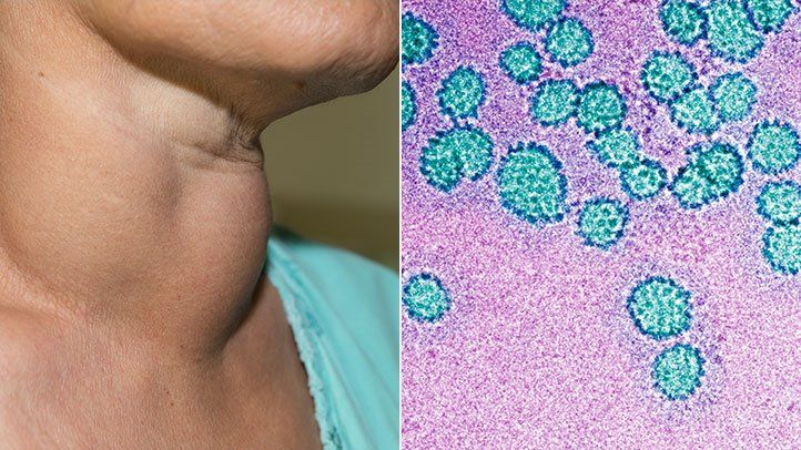 head and neck cancer caused by hpv intraductal papilloma with apocrine atypia