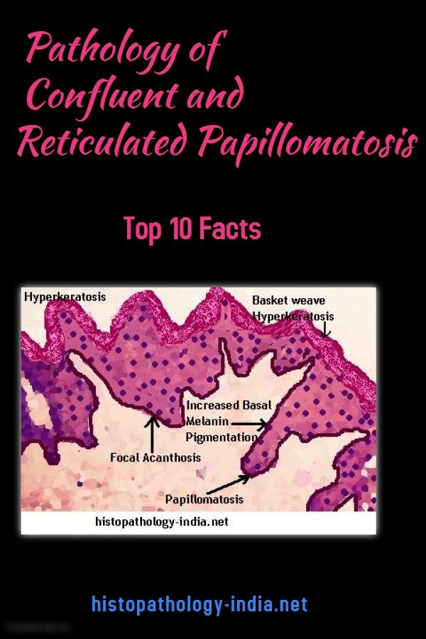 histology of confluent and reticulated papillomatosis cancer plamani stadiul 2