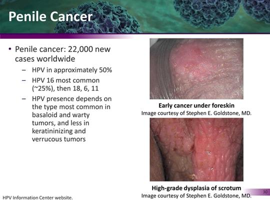 hpv cancer simptome