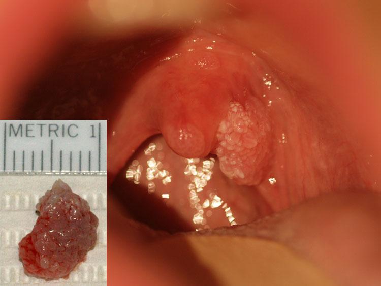 hpv and papilloma hpv virus beim mann