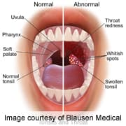 hpv cancer mouth symptoms comprimate parazite pentru alăptare
