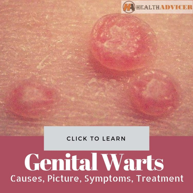 hpv for genital warts