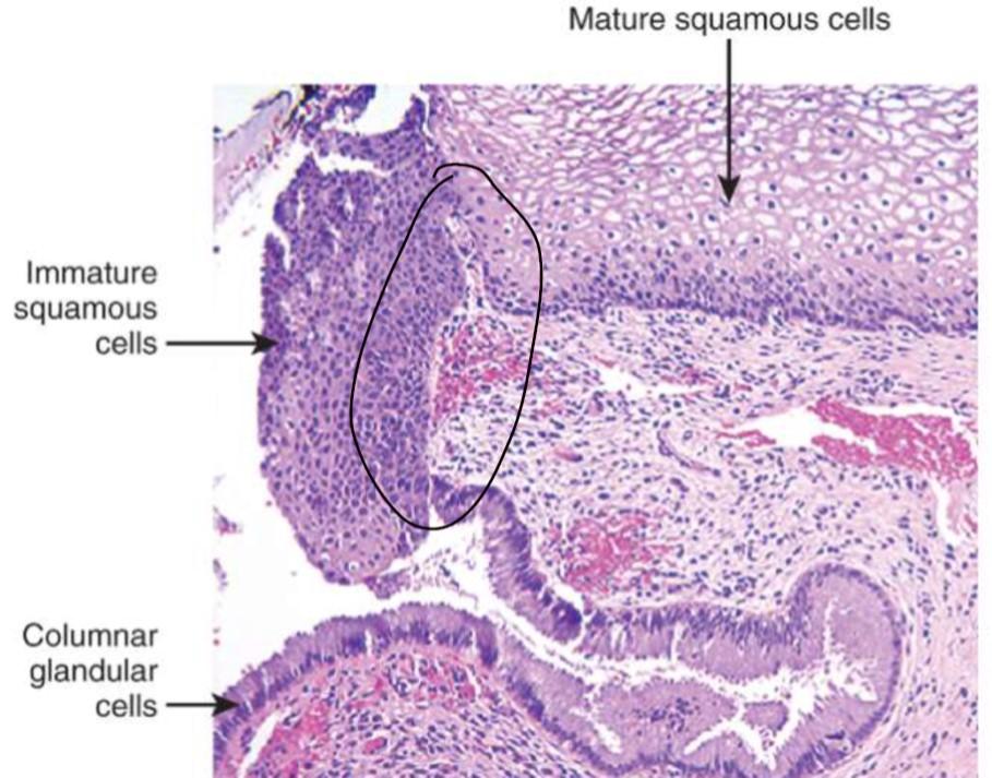 enterobius vermicularis terapija