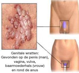 Hpv virus soa. Veruci genitale