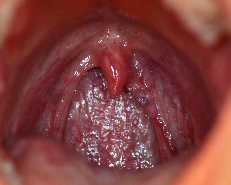 hpv nhs schedule medicamente pentru viermi pe baza evaluării viermilor