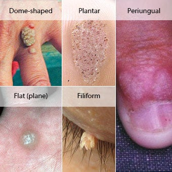 Warts on hands contagious,