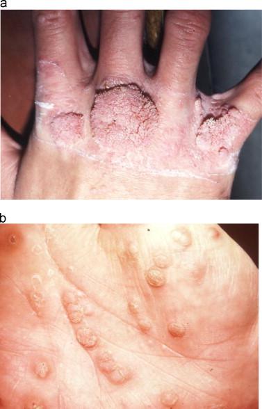 Human papillomavirus infection elbow