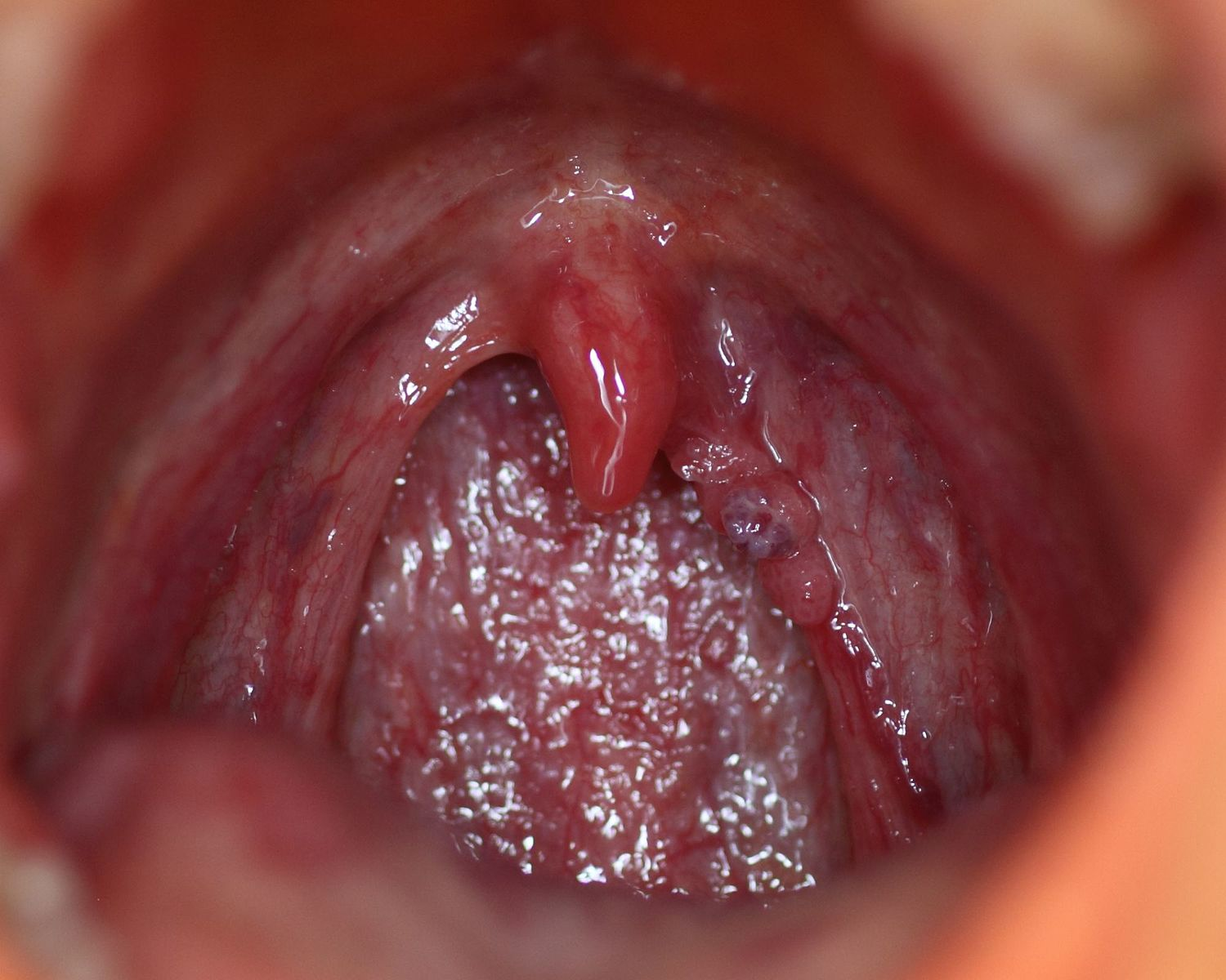 Human papillomavirus infection symptoms in mouth. Hpv vaccine in cervical cancer