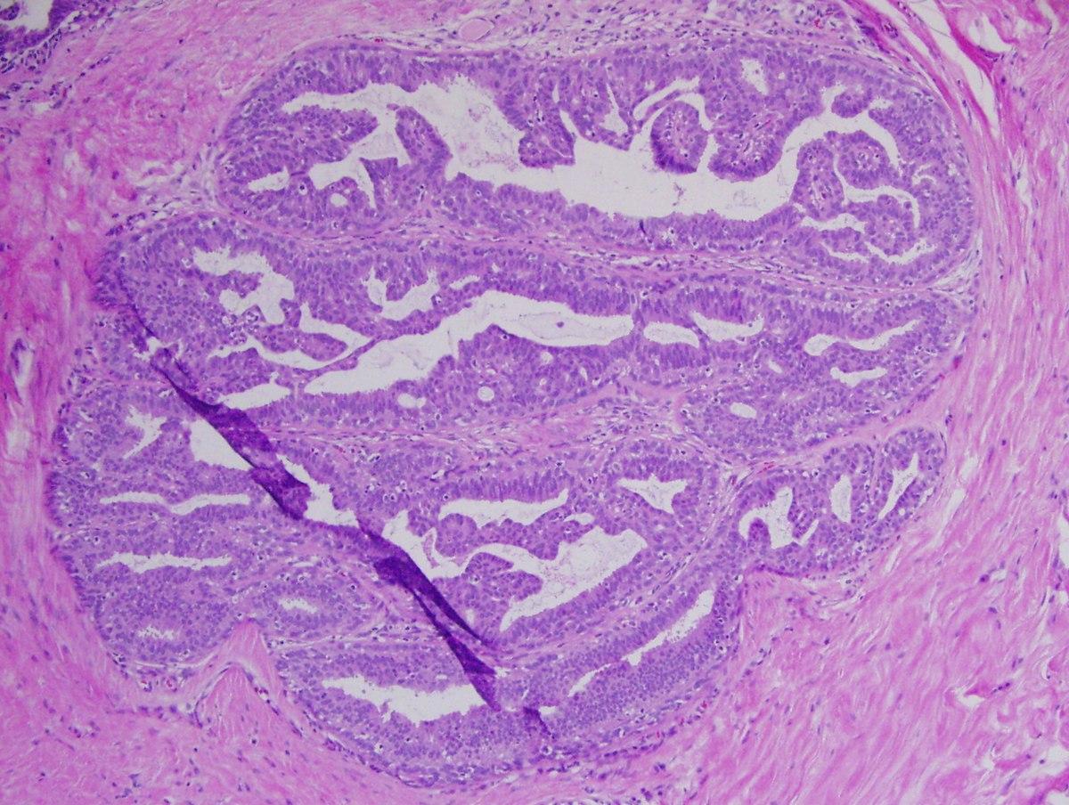 gastric cancer kills tempo latenza papilloma virus