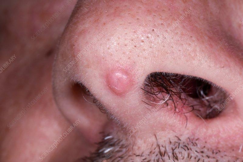 infecția nematodei cu cancer hpv prevents herpes
