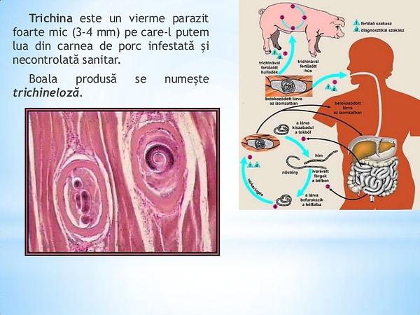 simptomele diphildobothriasis la om și tratament paraziti jenny talia