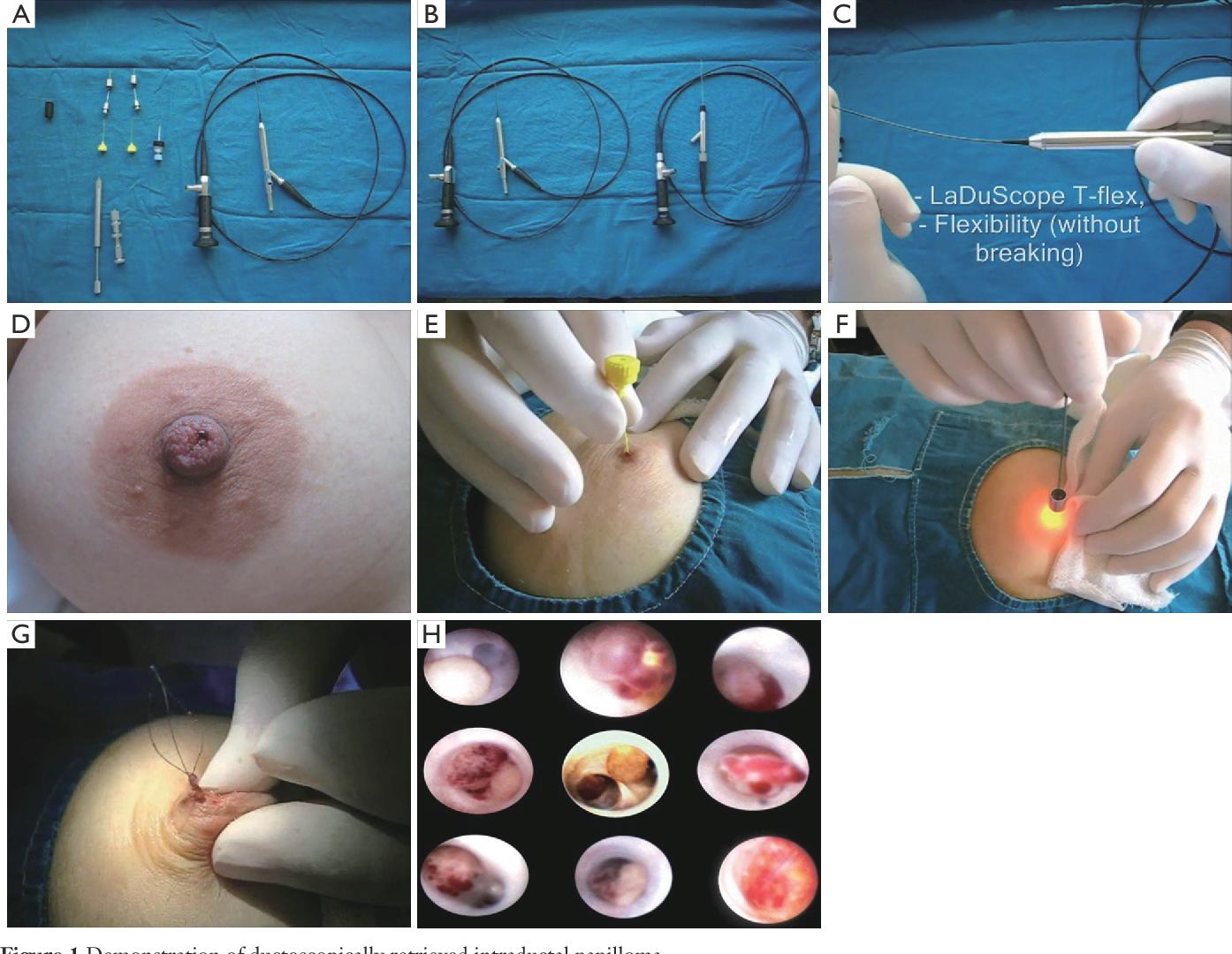 intraductal papilloma disease symptoms cele mai bune pastile pentru paraziții viermi