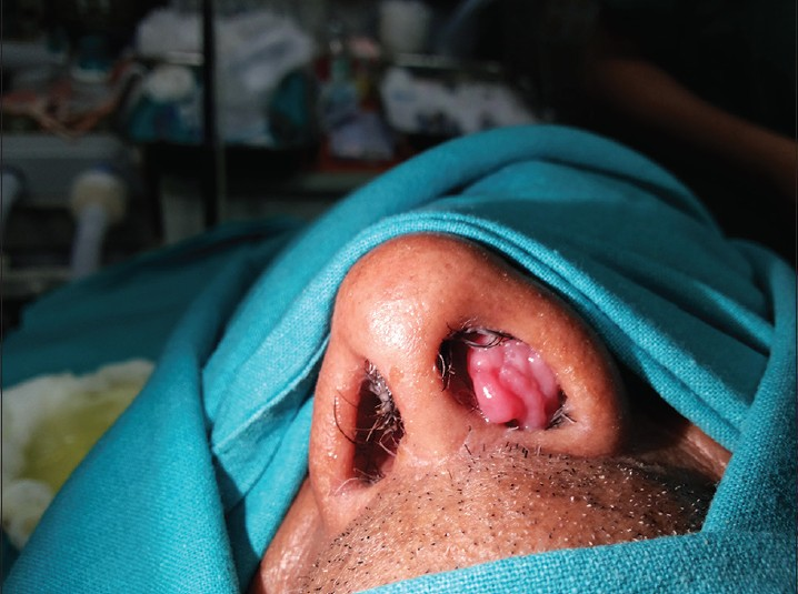 inverted papilloma nasal polyp