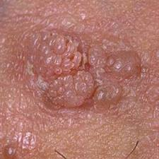 maladie papillomavirus symptomes)