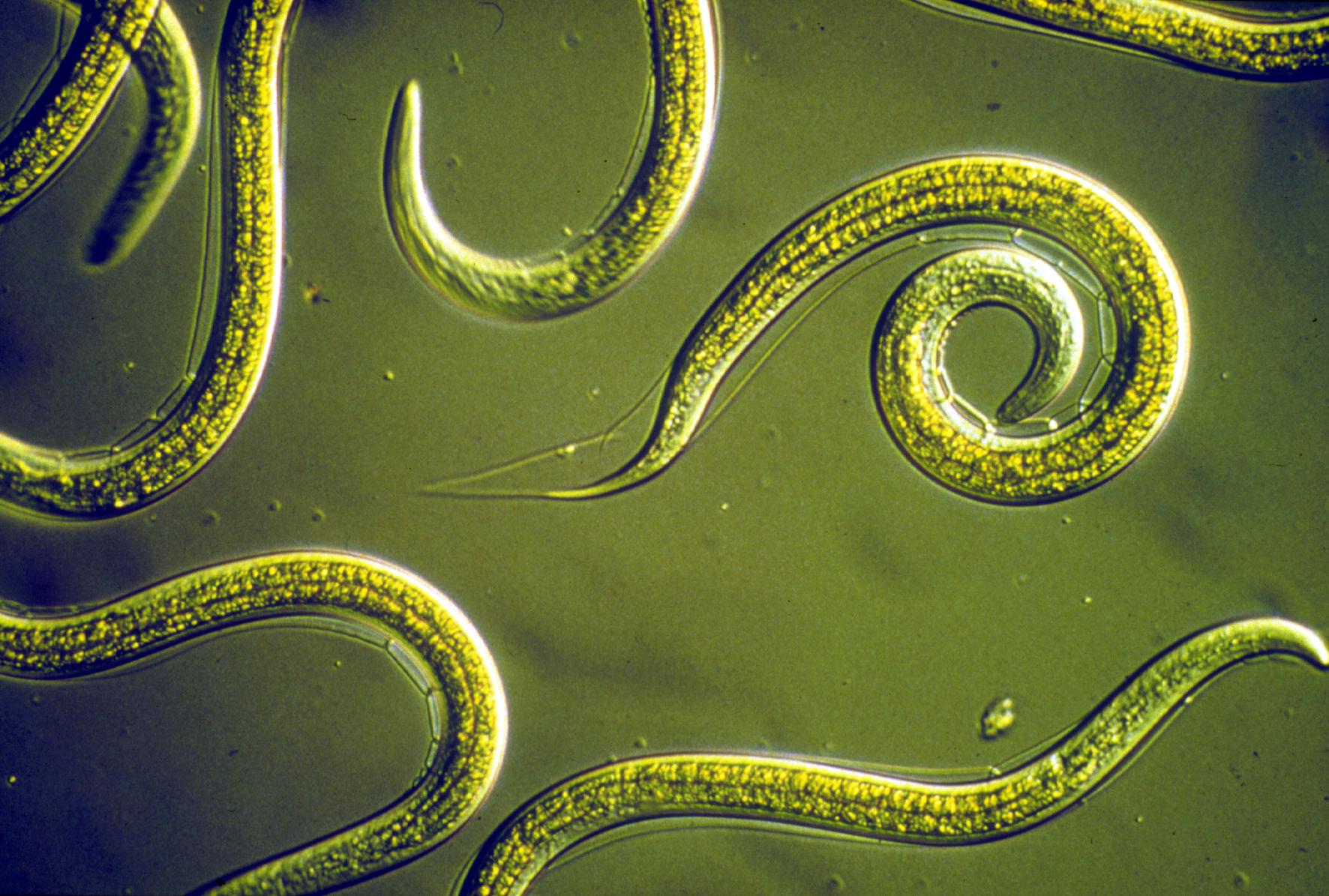 Oxiuros nome popular. Parasitos oxiuros sintomas Historia Natura Parasitismo Intestinl Niños