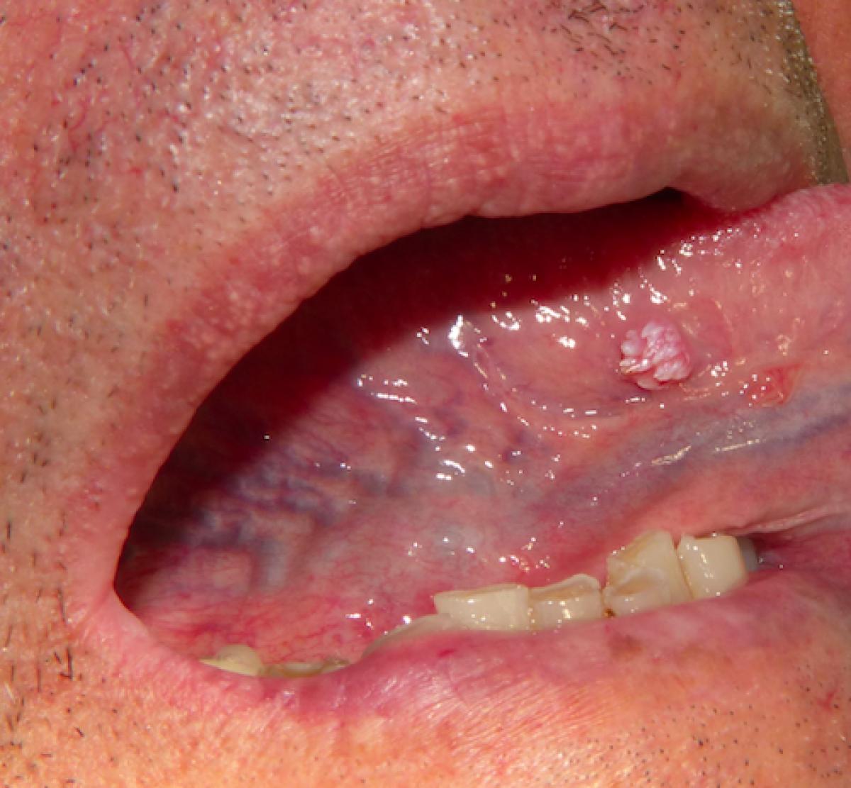 papillary lesion mouth simptome și medicamente de tratament pentru adulți