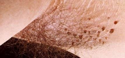 infecție cu bandă largă a unei persoane cum să dezintoxicăm curățarea colonului