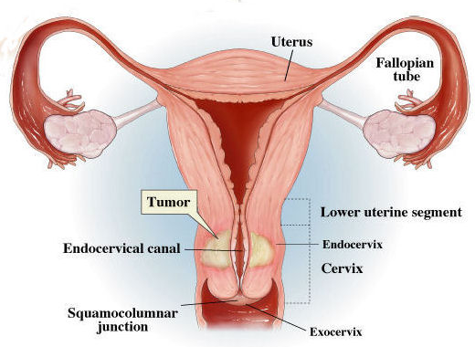 rectal cancer hartmann s procedure confluent and reticulated papillomatosis treatment