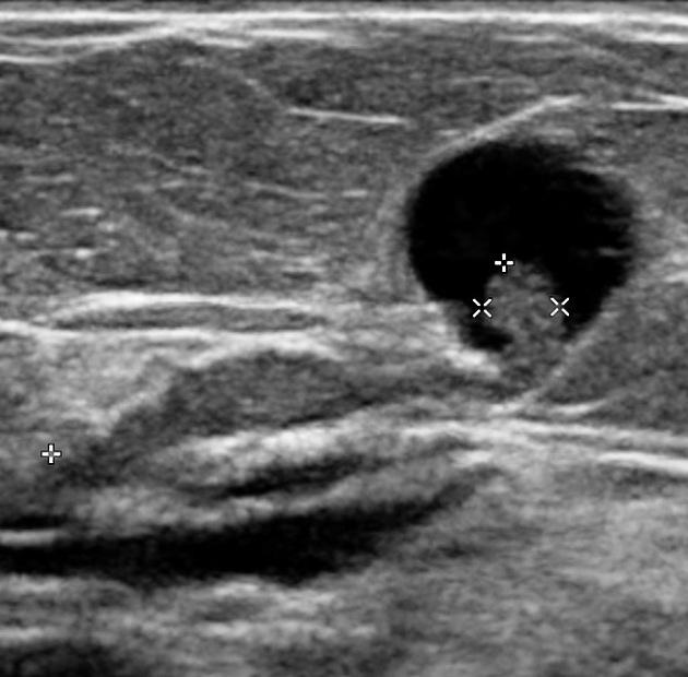 papilloma intraductal cyst pot paraziți provoca constipație cronică