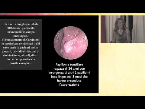 papilloma intraduttale medicitalia