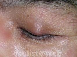 papilloma palpebrale toxine de salmnella typhi