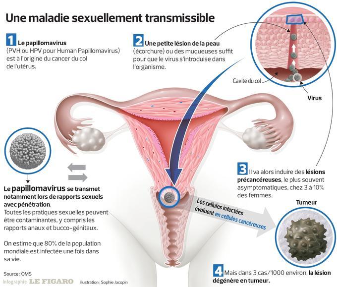 papilloma virus chez homme paraziți comprimate de curățare a corpului