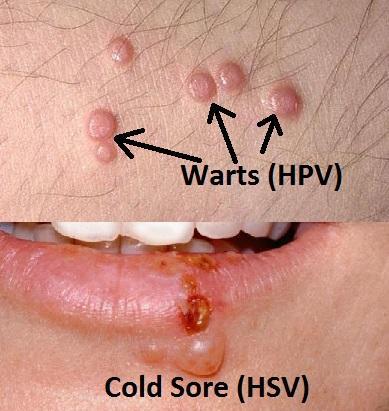 Squamous papilloma vs wart