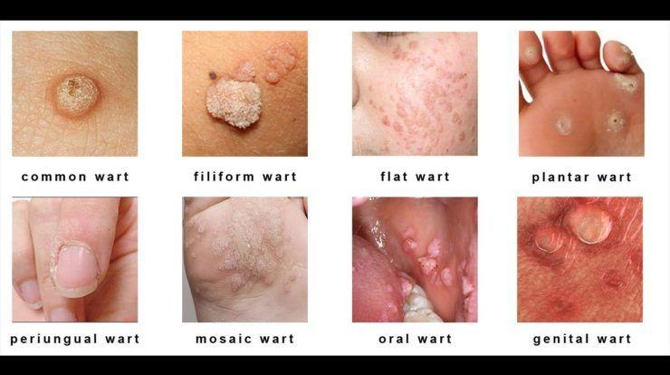 wart on foot garlic que es cancer benigno
