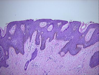 papillomatous epidermal nevus
