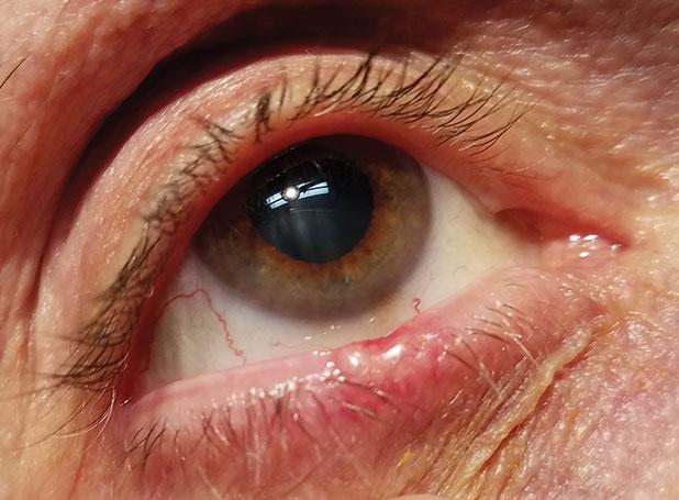 papillomavirus bocca cum să elimini viermii la vârsta adultă