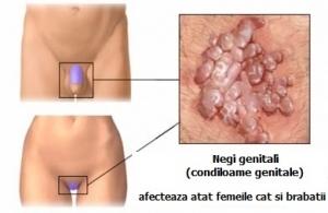 papillomavirus genital simptome