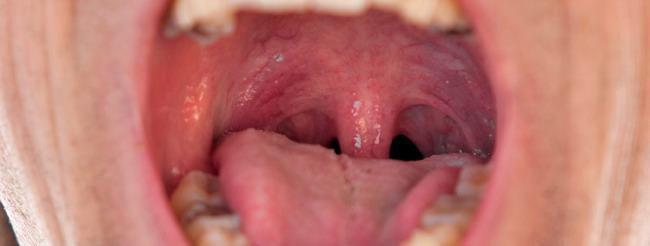 papilloma virus istituto dei tumori inverted papilloma disease
