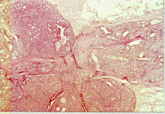 papiloma intraductal con atipia ce pastile sunt viermi