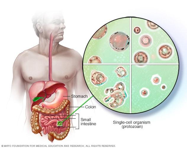 tratarea căii infecției cu helmint treatment for human papillomavirus cancer