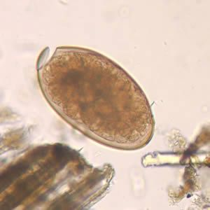 paraziti les douves medicamente parazitare la copii
